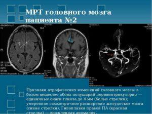 Единичные вазогенные очаги белого вещества полушарий головного мозга
