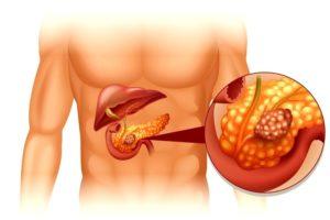Уплотнение поджелудочной железе