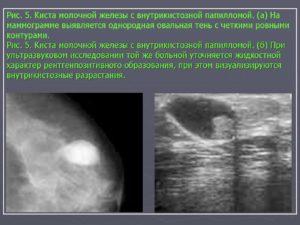 Результаты УЗИ молочной железы, фиброаденома, киста, онкология