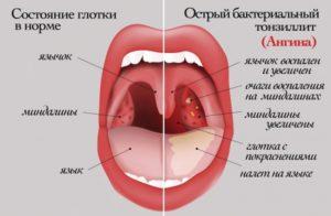 На небном язычке красные точки и болит горло