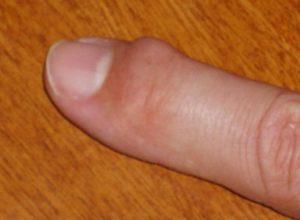 Уплотнение на подушечке пальца
