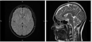 МРТ, КТ (МСКТ), сотрясение мозга