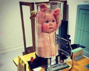 Рентген у ребенка 2 лет