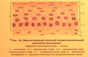 U - Эпителий плоский поверхностного слоя 10-15 в п/зр