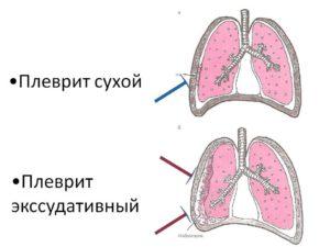 Уплотнение плевры после воспаления лёгких