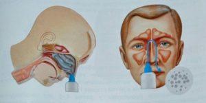 Заложенность носа после промывания