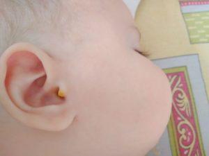 Засохшие комочки в ушке у ребенка