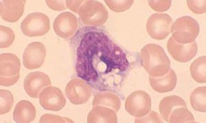 Вакуолизация в цитопл. Моноцитов