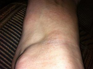 Шершавое пятно на ноге