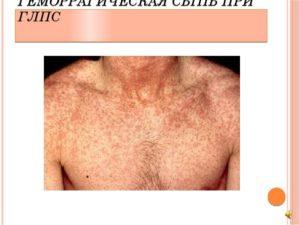 Геморрагическая сыпь при лейкозе