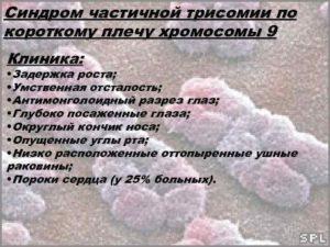 Частичная трисомия 9 хромосомы