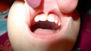 Уздечка верхней губы у ребенка