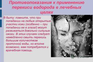 Перекись водорода попала в глаз ребенку