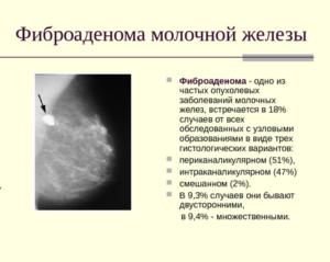 Рак или фиброаденома