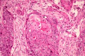 Метаплазия, фиброз
