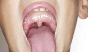 Необычно увеличена миндалина лечение месяц безрезультатно