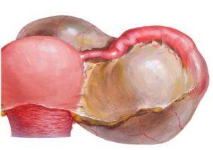 Параовариальная киста во время беременности