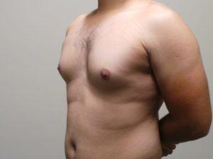 Увеличена одна грудная железа у мужчины
