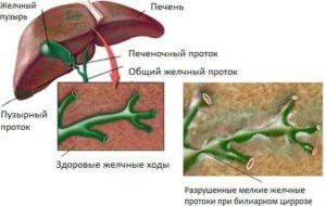 Крапивница, паразиты, уплотнение желчных протоков в печени