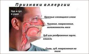 Постоянно чешет нос, из носика не течёт