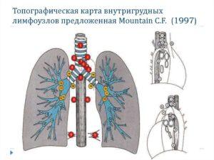 Внутригрудные лимфатические узлы, очаги в легких