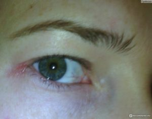 Трещина в уголке глаза