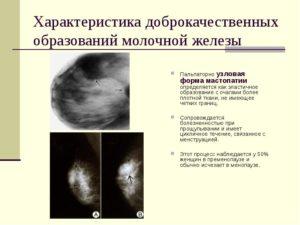 Узловое образование в молочной железе