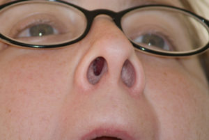 Лопаются пузырики в носу