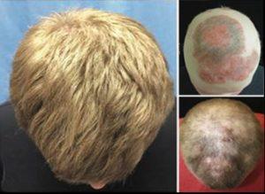 Выпадение волос при аутоиммунных заболеваниях
