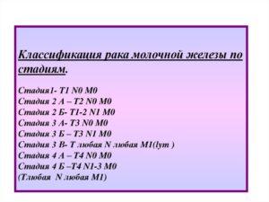 Поставлен диагноз: ЗНО правой молочной железы T3N1M0