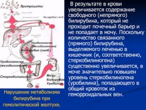 Понижены тромбоциты, увеличен билирубин и железо, увеличена селезёнка