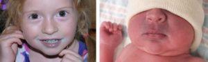 Синеет носогубный треугольник у ребенка 5 лет