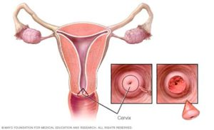Беременность после конизации
