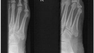 Перелом 5 плюсневой кости