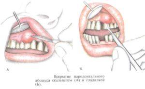 Образовалась шишка на десне после удаления зуба мудрости