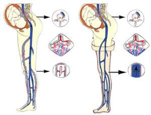 Венозный поток во время беременности