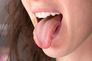 Шишка сбоку языка