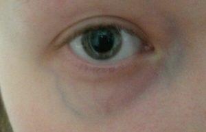 Пульсирует венка под глазом