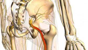Как лечить защемление пахового нерва