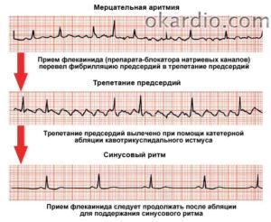 Может ли при нарушении ритма сердца, болеть голова?
