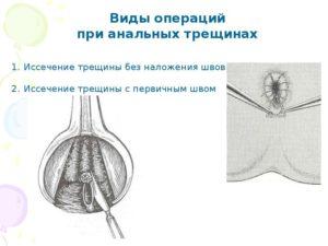 Реабилитация после иссечениея анальной трещины