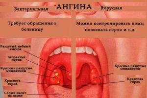 Боли в горле, отек миндалин, красные пятна