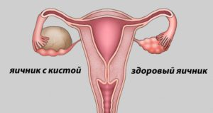 Киста яичника можно ли заниматься сексом