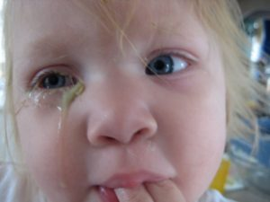 Белые сопли у ребенка