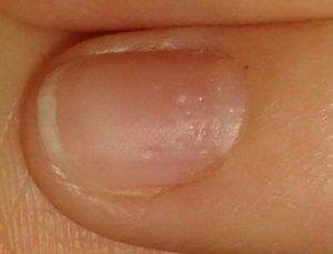 Вмятина на ногте