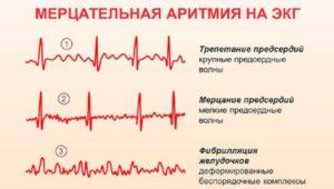 Срывы сердечного ритма