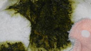Зловонный зелёный кал у годовалого ребёнка