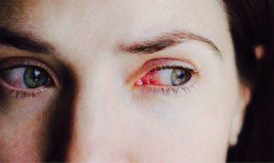 Спала в линзах, боль в глазах