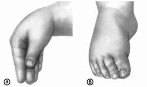 Не произвольные подергивания ног при спокойном состоянии ребенка