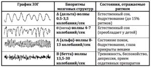 Расшифровка энцефалограммы, признаки ирритации медиобазальных образований